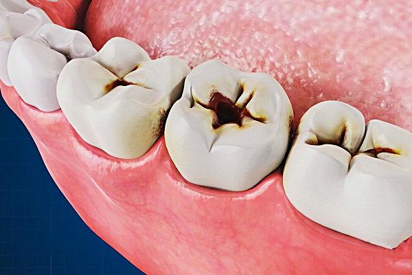 Терапевтическая стоматология. Кариес.
