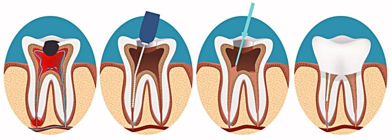 Терапевтическая стоматология. Пломбирование.